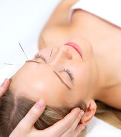 Acupuncture FAQ