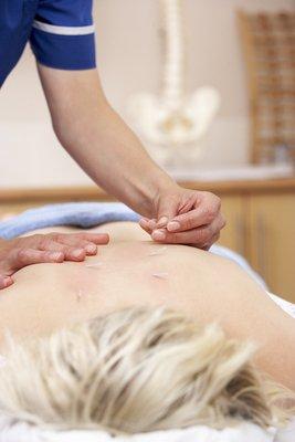Benefit of Acupuncture